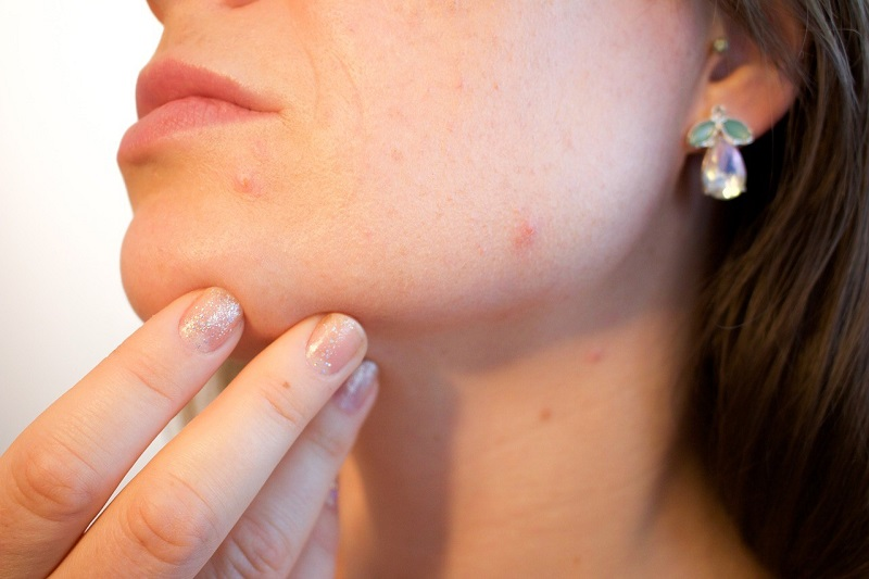 risk of developing acne