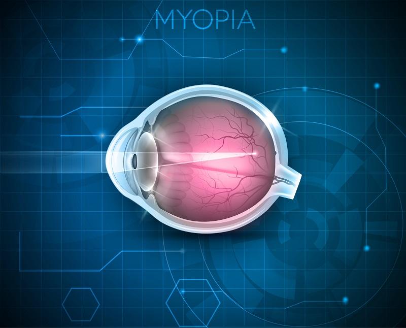 myopia ashburton